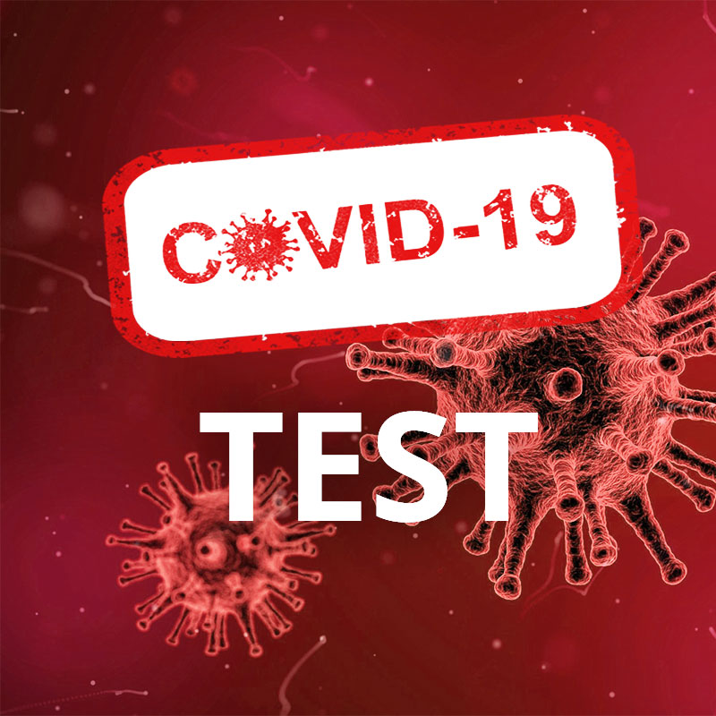 Virus Covid 19-Test